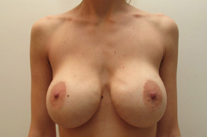 35-44 year old woman treated with Breast Implant Removal before 1946297