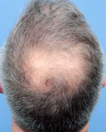 42 year old man treated with Hair Transplant