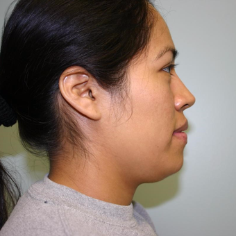 33 year old woman treated with Chin Liposuction before 3442281