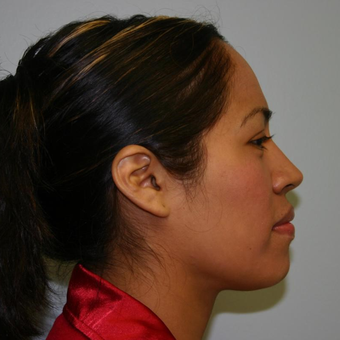 33 year old woman treated with Chin Liposuction after 3442281
