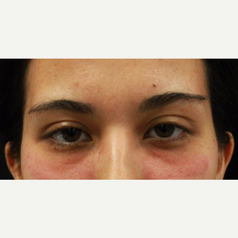 27 year old female treated with Belotero to undereyes before 3104236