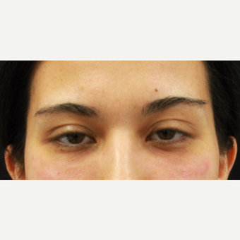 27 year old female treated with Belotero to undereyes after 3104236