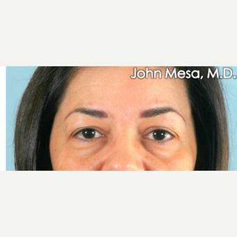 45-54 year old woman treated with Eye Bags Treatment before 3659888