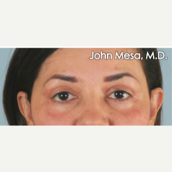 45-54 year old woman treated with Eye Bags Treatment after 3659888