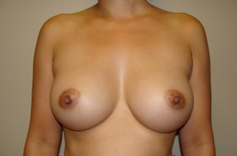 Breast Augmentation after 961310