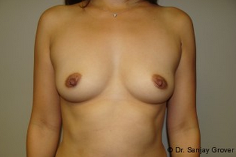 Breast Augmentation before 961310