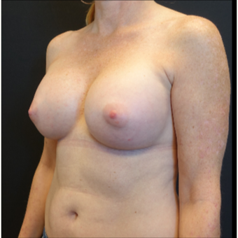 35-44 year old woman treated with Breast Implants after 3529802