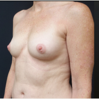 35-44 year old woman treated with Breast Implants before 3529802