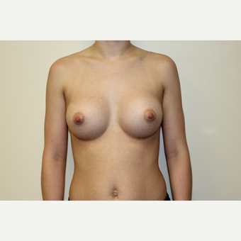 25-34 year old woman treated with Breast Augmentation after 3417508