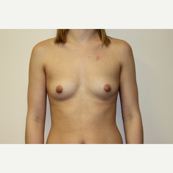 25-34 year old woman treated with Breast Augmentation before 3417508