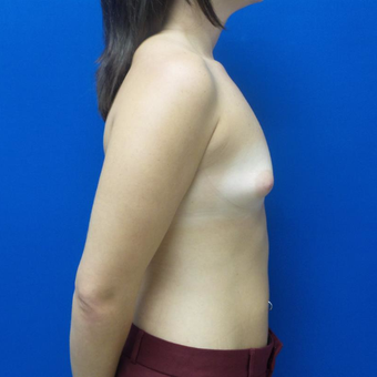 25-34 year old woman treated with Breast Augmentation before 3059534