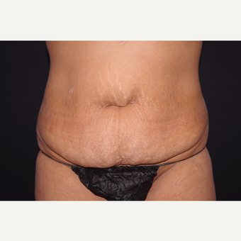 35-44 year old woman treated with Tummy Tuck before 3123660