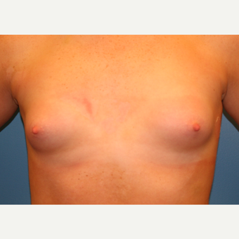 19 year old woman treated with Breast Augmentation before 3482845