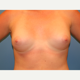 19 year old woman treated with Breast Augmentation after 3482845