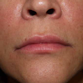 35-44 year old woman treated with Lip Augmentation after 3668767