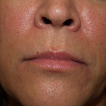 35-44 year old woman treated with Lip Augmentation before 3668767