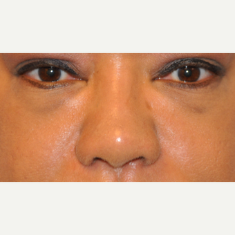 45-54 year old woman treated with Rhinoplasty after 3446839