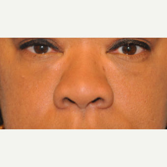 45-54 year old woman treated with Rhinoplasty before 3446839