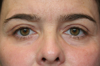 Eyelid Surgery after 1513811