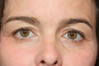 Eyelid Surgery before 1513811