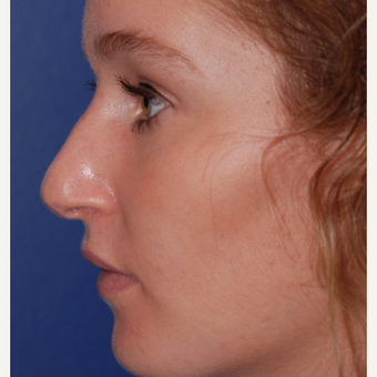 18-24 year old woman treated with Rhinoplasty before 3624361