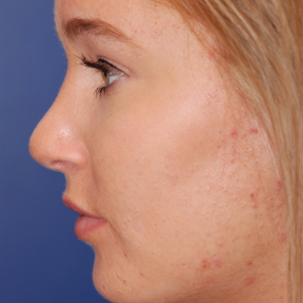 18-24 year old woman treated with Rhinoplasty after 3624361
