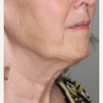 55-64 year old woman treated with Neck Lift before 3370684