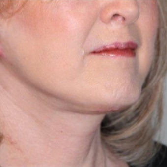 55-64 year old woman treated with Neck Lift after 3370684