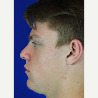 Male Rhinoplasty after 3684383