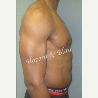 35-44 year old man treated with Male Breast Reduction after 3333193