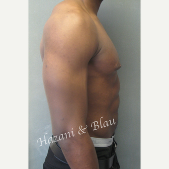 35-44 year old man treated with Male Breast Reduction before 3333193