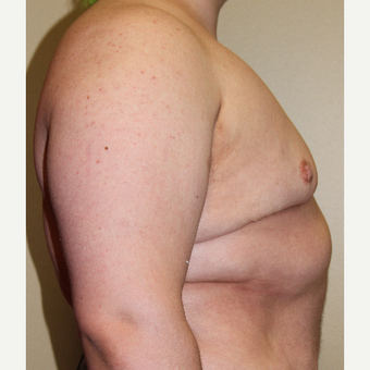 18-24 year old man treated with FTM Chest Masculinization Surgery after 3215339