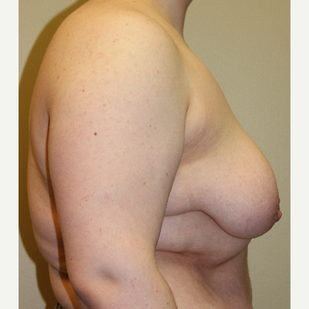 18-24 year old man treated with FTM Chest Masculinization Surgery before 3215339