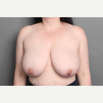 35-44 year old woman treated with Breast Lift before 2993571