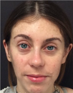 25-34 year old woman treated with Restylane before 3836230