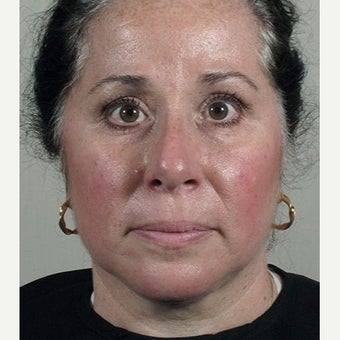 35-44 year old woman treated with Halo Laser after Ultherapy treatment. after 1909003