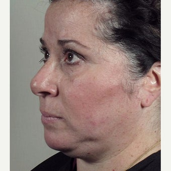 35-44 year old woman treated with Halo Laser after Ultherapy treatment. 1909003
