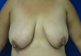 Breast Lift before 3055109