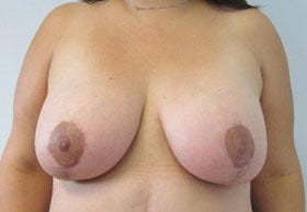 Breast Lift after 3055109