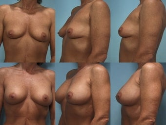 Breast Augmentation Case A to C Cup before 123857