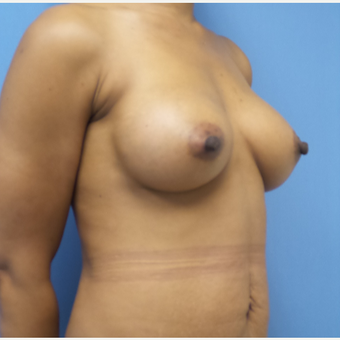 35-44 year old woman treated with Breast Augmentation after 3038391