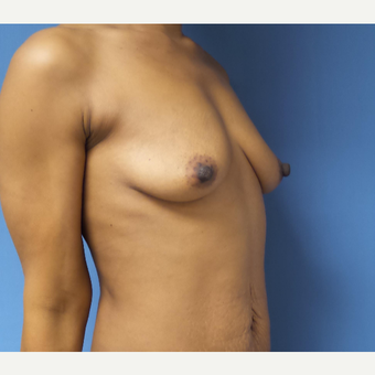 35-44 year old woman treated with Breast Augmentation before 3038391