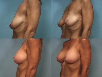Mastopexy with Breast Augmentation before 124498