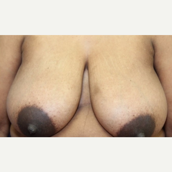 47 year old woman with a Breast Reduction before 3065227