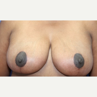 47 year old woman with a Breast Reduction after 3065227