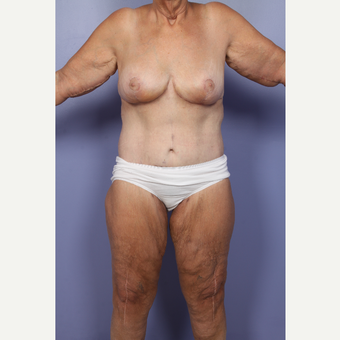 55-64 year old woman treated with Body Lift after 2852255