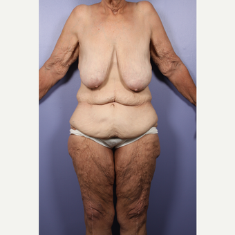 55-64 year old woman treated with Body Lift before 2852255