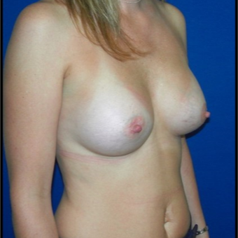 25-34 year old woman treated with Breast Implants after 3131771