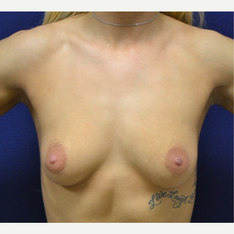 18-24 year old woman treated with Breast Augmentation before 3651637