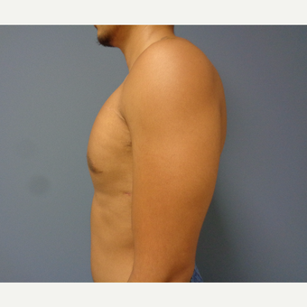 18-24 year old man treated with Male Breast Reduction after 3493596